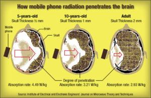 Le radiazioni dei devices su tre cervelli di età diverse