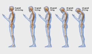 Una serie di schiene e colli piegati a causa della postura da smartphone e la nuova patologia text back